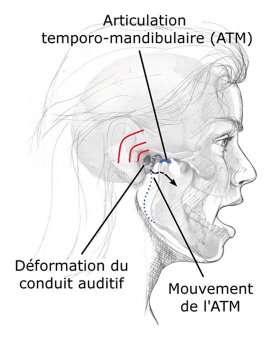 Bougez Votre Mâchoire Pour Recharger Vos Prothèses intérieur Le Canal Auditif